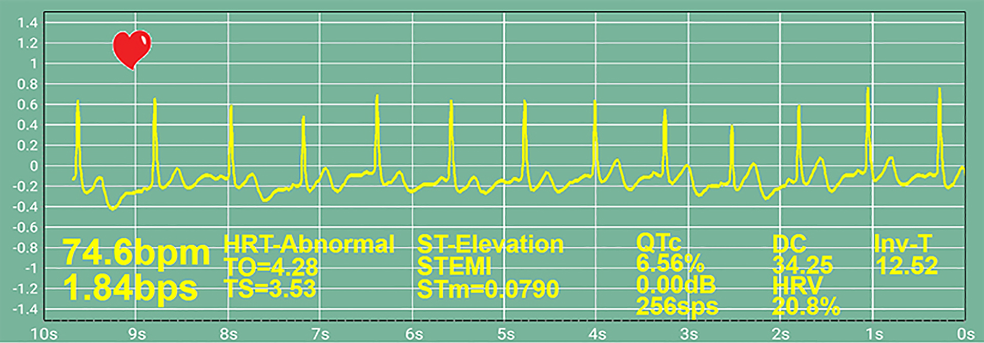 RealTime ECG