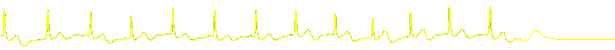ecg-pulse-yellow