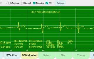 ECG-Arrhythmia-v0