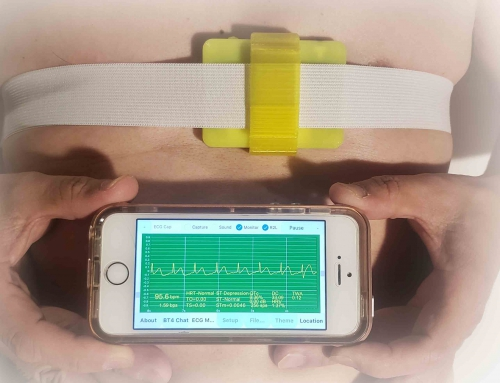 ecgMonitor Realtime ECG iPhone SE