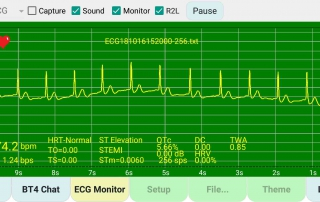 demo-captured-ecg-file