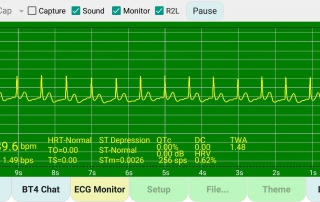demo-real-time-ecg-captured