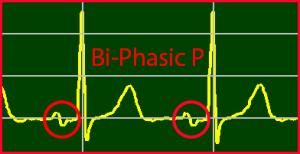 ECG Interpretation: Biphasic P-Wave
