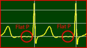 ECG Interpretation: Flat P-Wave