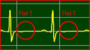 ECG Interpretation: Flat T-Wave