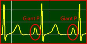 ECG Interpretation: Giant P-Wave