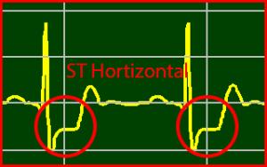 ECG Interpretation: Horizontal-Sloping-Myocardial-Ischemia