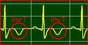 ECG Interpretation: