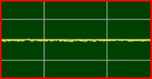 ECG Interpretation: No-ECG/EKG-Signal-or-Asystole