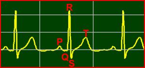 ECG Interpretation: Normal-Sinus-Rhythm