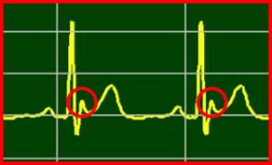 Osborn-Wave, Undetermined-PQRST-Complex