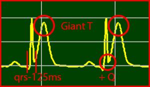 ECG Interpretation: Positive S-Wave & Prolong T-Wave