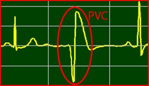 ECG Interpretation: Premature-Ventricular-Contraction