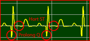 ECG Interpretation: ST Recovery Normalized T-Wave Persistent Q-Wave