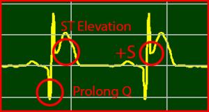 ECG Interpretation: ST-Elevation STEMI Extended-Q Normalize-ST