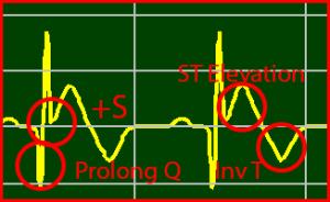 ECG Interpretation: ST Elevation STEMI Extended Q Normalized-ST Inverted T-Wave