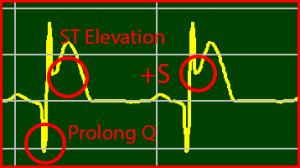 ECG Interpretation: ST Elevation STEMI Extended Q-Wave Positive S-Wave Positive T-Wave