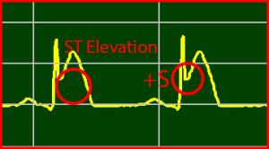 ECG Interpretation: ST-Elevation STEMI Positive S-Wave Positive T-Wave