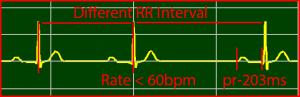 ECG Interpretation: Second-Degree-AV-Block