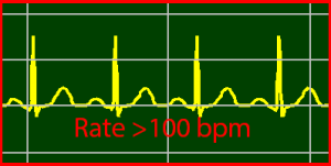 ECG Interpretation: Sinus-Tachycardia