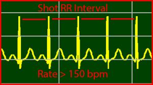 ECG Interpretation: Supraventricular-Tachycardia