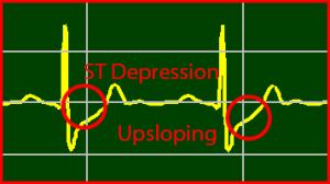 ECG Interpretation: Upsloping-Depression