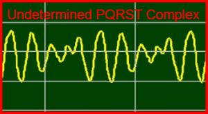 ECG Interpretation: Ventricular-Fibrillation, Undetermined-PQRST-Complex