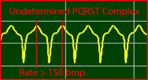 ECG Interpretation: Ventricular-Tachycardia, Undetermined-PQRST-Complex
