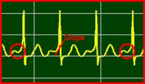 ECG Interpretation: Wolff-Parkinson-White