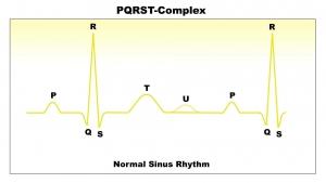 ECG Interpretation: Normal-Sinus-Rhythm-Full-Single-Pulse